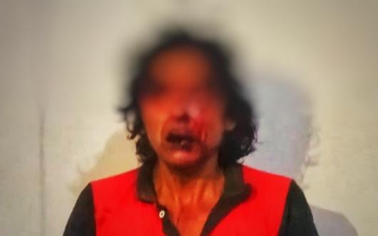 Rescata policía de Tlaxco a probable ladrón